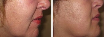 Juvederm/Fat Grafting before 718216