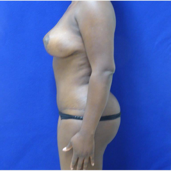 32 y.o. – female – Wise pattern mastopexy with abdominoplasty (mommy makeover) after 3401302