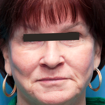 65-74 year old woman treated with Photofacial BBL and anti-redness after 2827002