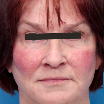 65-74 year old woman treated with Photofacial BBL and anti-redness before 2827002