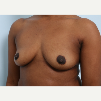 Breast Augmentation before 3460074