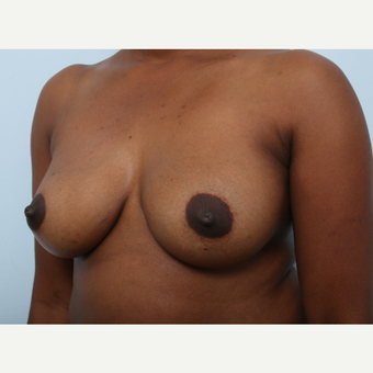 Breast Augmentation after 3460074