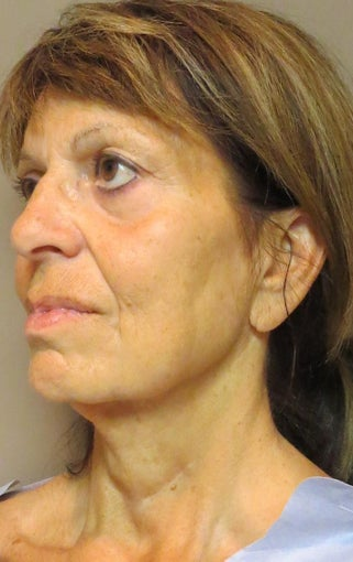 Facelift for this 65 Year Old Woman  before 1480039