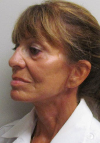 Facelift for this 65 Year Old Woman  after 1480039