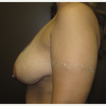 35-44 year old woman treated with Breast Lift before 3253183