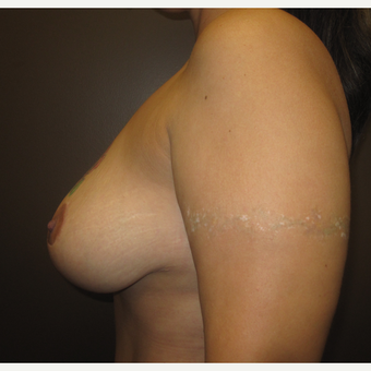 35-44 year old woman treated with Breast Lift after 3253183