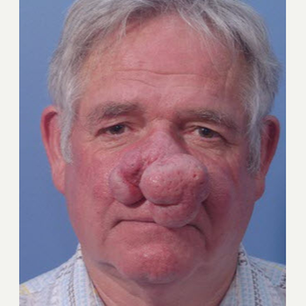 55-64 year old man treated with Laser Surgery before 3710996