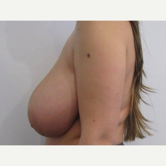 24 year old woman treated with anchor incision Breast Reduction before 2625938