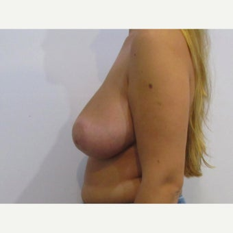 24 year old woman treated with anchor incision Breast Reduction after 2625938