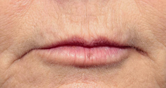 55-64 year old woman treated with Volbella for lip line smoothing after 3810398