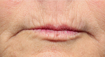 55-64 year old woman treated with Volbella for lip line smoothing before 3810398