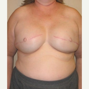45-54 year old woman treated with Breast Reconstruction