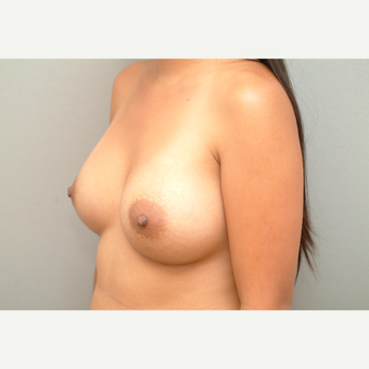 35-44 year old woman treated with Breast Implants after 3732702