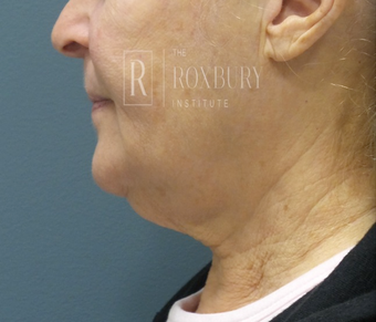 65-74 year old woman treated with Non-Surgical Neck Lift before 3777573