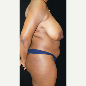 Breast Reduction and body contouring using liposuction before 3332949