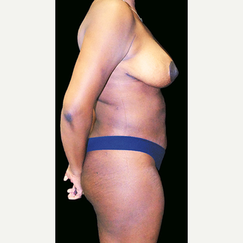 Breast Reduction and body contouring using liposuction after 3332949