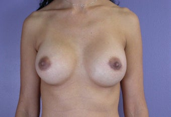 25-34 year old woman treated with Breast Augmentation after 3278090