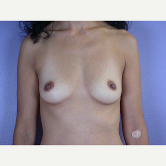 25-34 year old woman treated with Breast Augmentation before 3278090