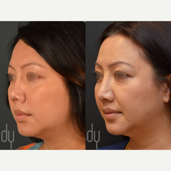 Revision Asian Rhinoplasty before 3477560