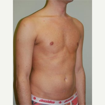 18-24 year old man treated with Pec Implants