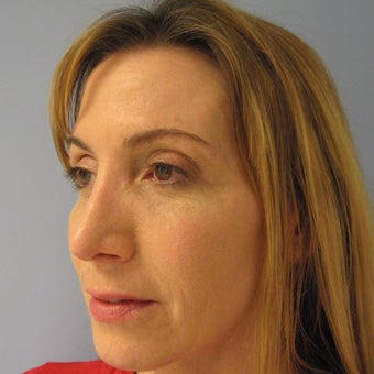 45-54 year old woman treated with Revision Rhinoplasty 1788745