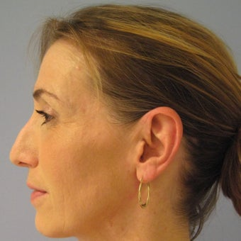 45-54 year old woman treated with Revision Rhinoplasty before 1788745