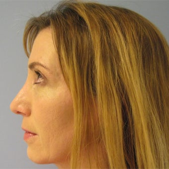 45-54 year old woman treated with Revision Rhinoplasty after 1788745