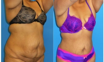 25-34 year old woman treated with Liposuction before 3162315