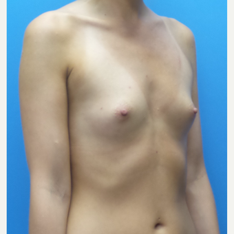 27 year old woman treated with Breast Augmentation before 3836453