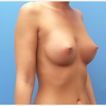 27 year old woman treated with Breast Augmentation after 3836453