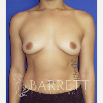 18-24 year old woman treated with Breast Implants before 3584674