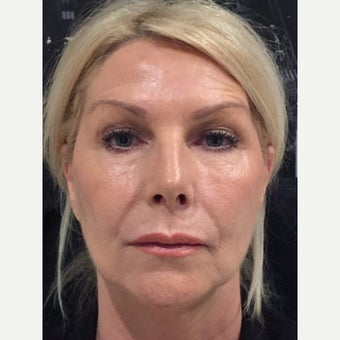 Juvederm - 8 Point Lift after 3093484