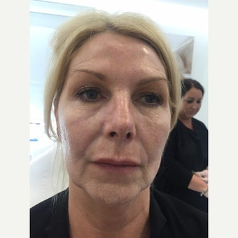 Juvederm - 8 Point Lift before 3093484
