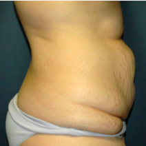 37 year old woman treated with Tummy Tuck before 3578642