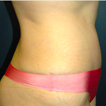 37 year old woman treated with Tummy Tuck after 3578642