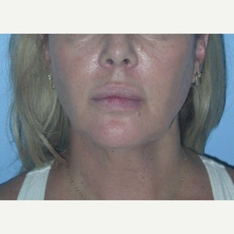 45-54 year old woman treated with Buccal Fat Removal after 1615759
