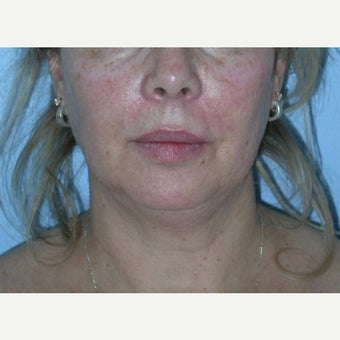 45-54 year old woman treated with Buccal Fat Removal before 1615759