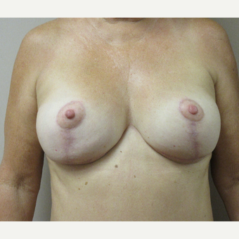 55-64 year old woman treated with Breast Lift with Implants after 3508342