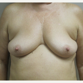 55-64 year old woman treated with Breast Lift with Implants before 3508342