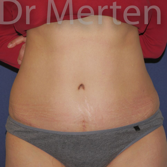 Tummy Tuck after 3599630