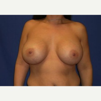 45-54 year old woman treated with Breast Augmentation after 3220064