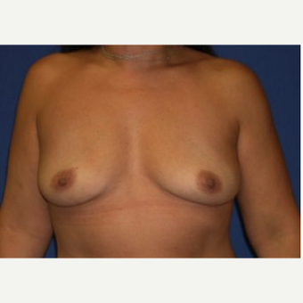 45-54 year old woman treated with Breast Augmentation before 3220064