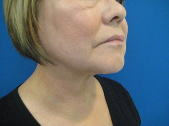 Laser Liposuction - Neck/Jowl after 1058546