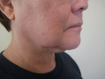 Laser Liposuction - Neck/Jowl before 1058546
