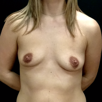 25-34 year old woman treated with Breast Augmentation before 3246166