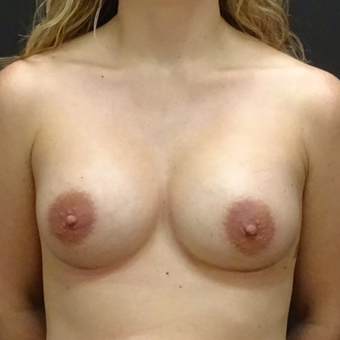 25-34 year old woman treated with Breast Augmentation after 3246166