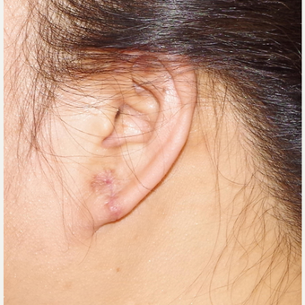 18-24 year old woman treated with Ear Lobe Surgery after 3741677
