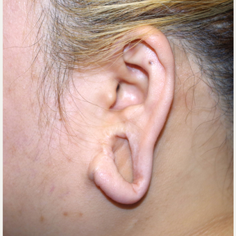 18-24 year old woman treated with Ear Lobe Surgery before 3741677