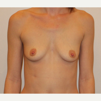 35-44 year old woman treated with Breast Augmentation before 3372526