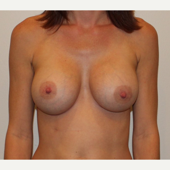 35-44 year old woman treated with Breast Augmentation after 3372526